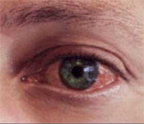 Alergies oculars