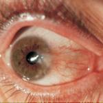 Inflamacions Oculars